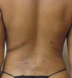 Manhattan liposuction after 9